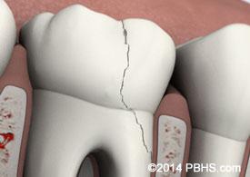 Fractured Cusp